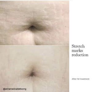 1_stretch-mark